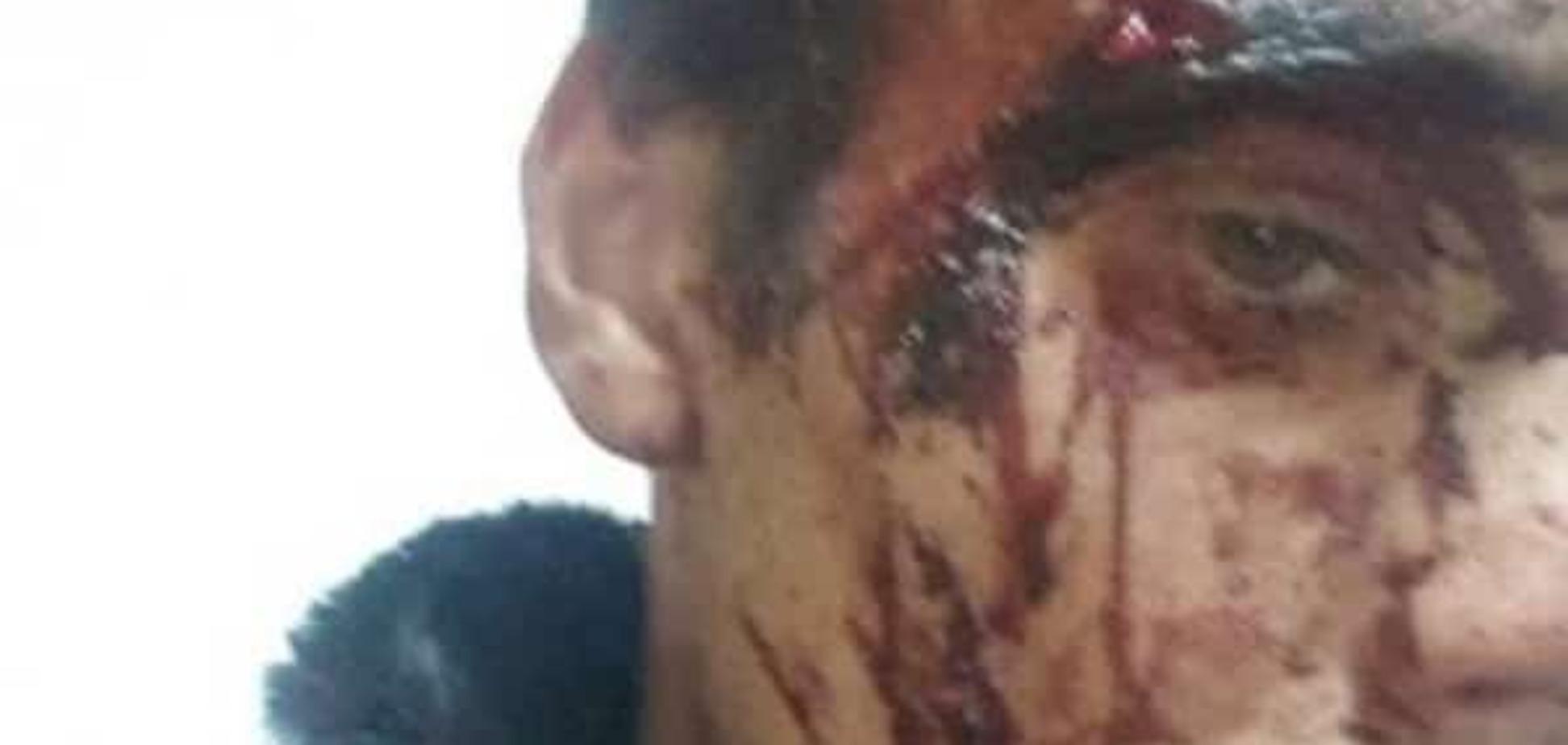 У Росії жорстоко побили переселенців з Донбасу: фотофакт