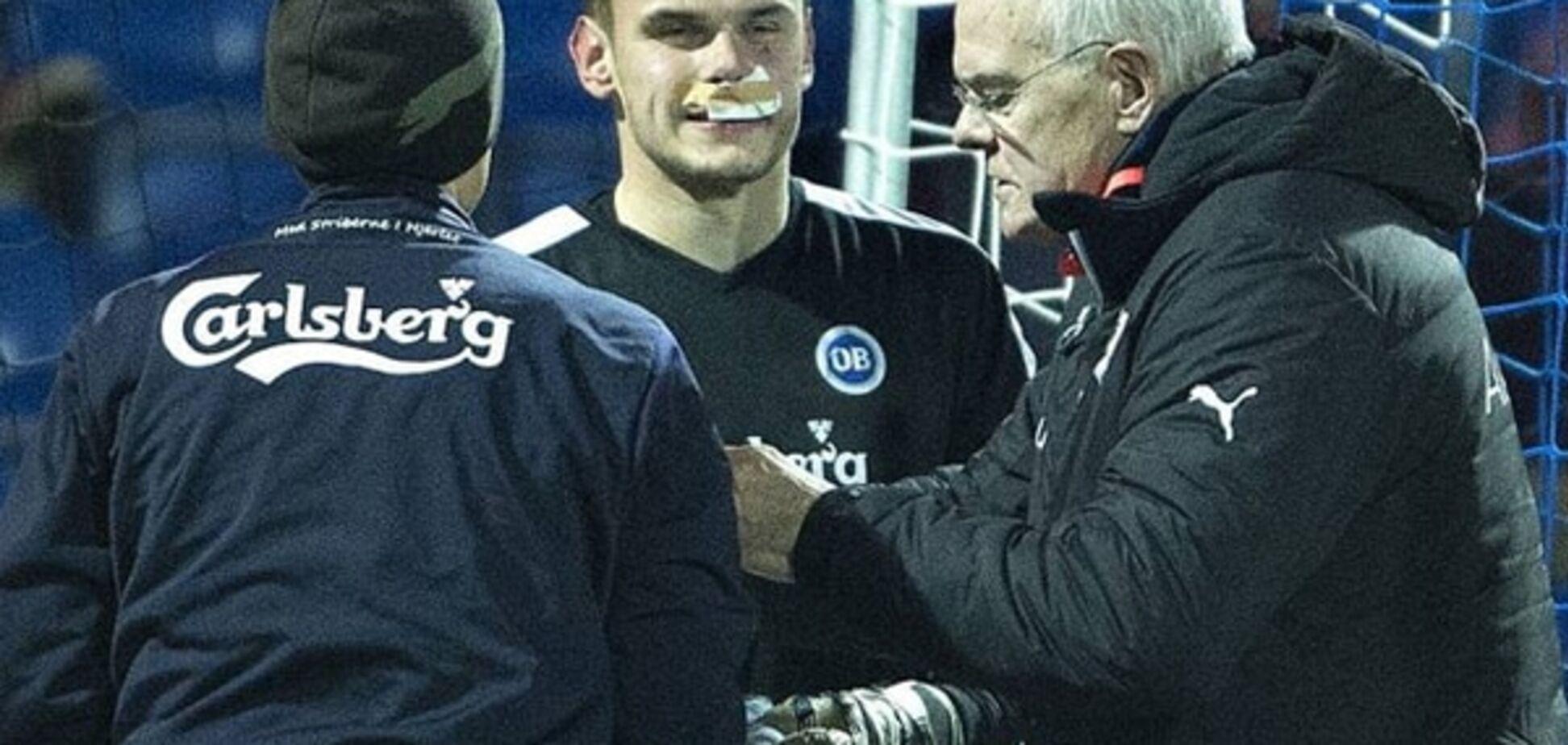 Ішак розбив обличчя воротареві 'Динамо': страшні фото