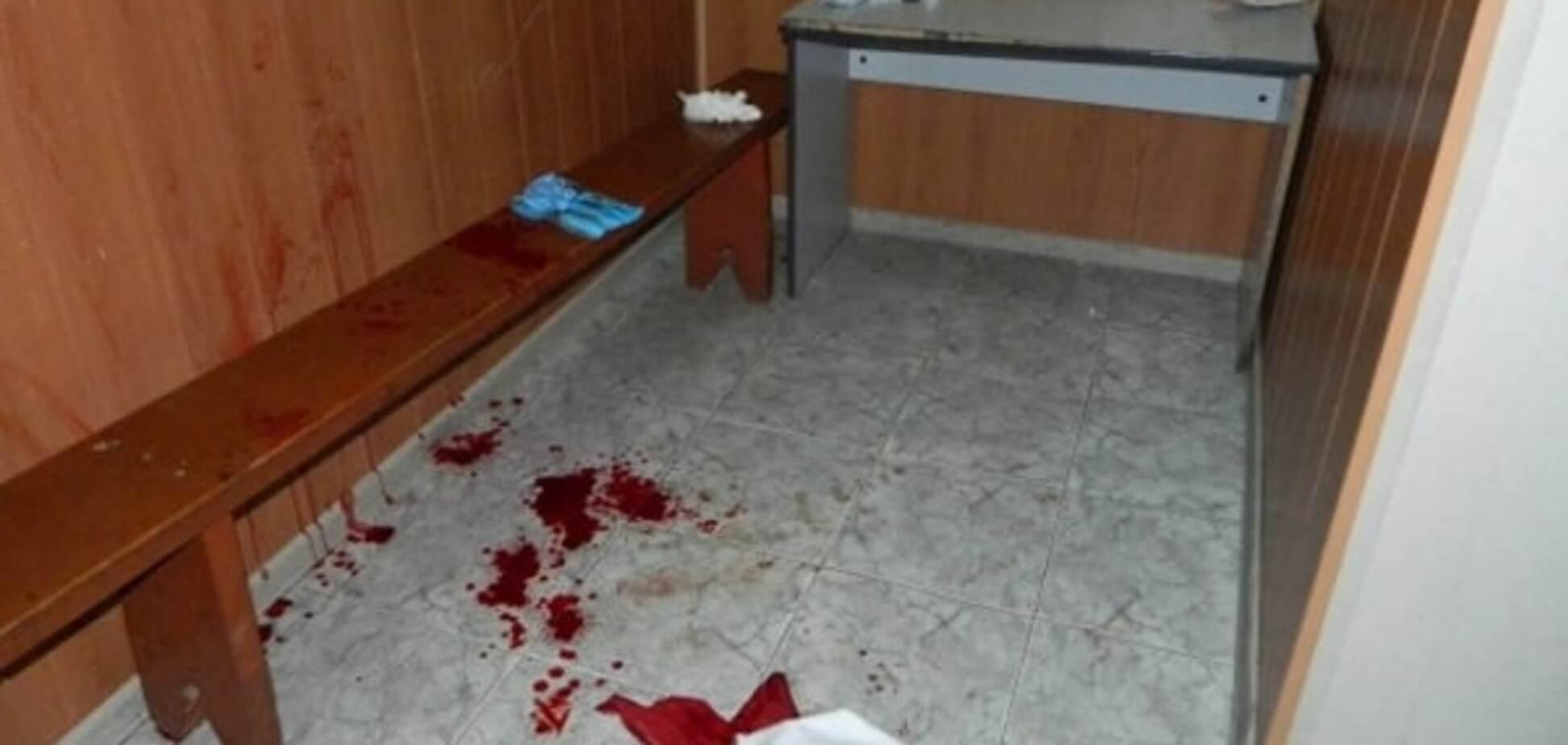 У Києві хулігани поранили чоловіка за зауваження