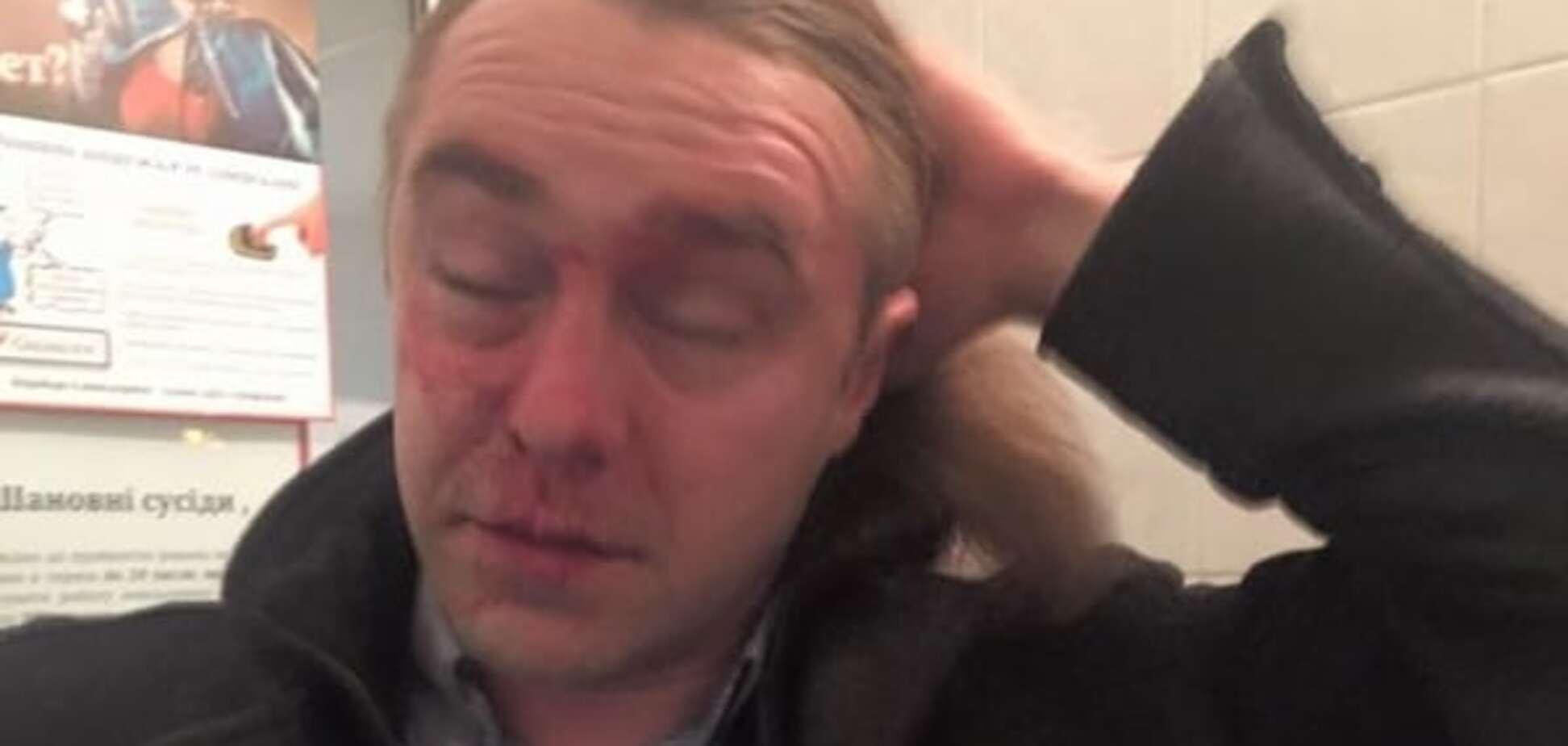 Коллеги, хулиганы и любовники: кто и за что бьет украинских политиков