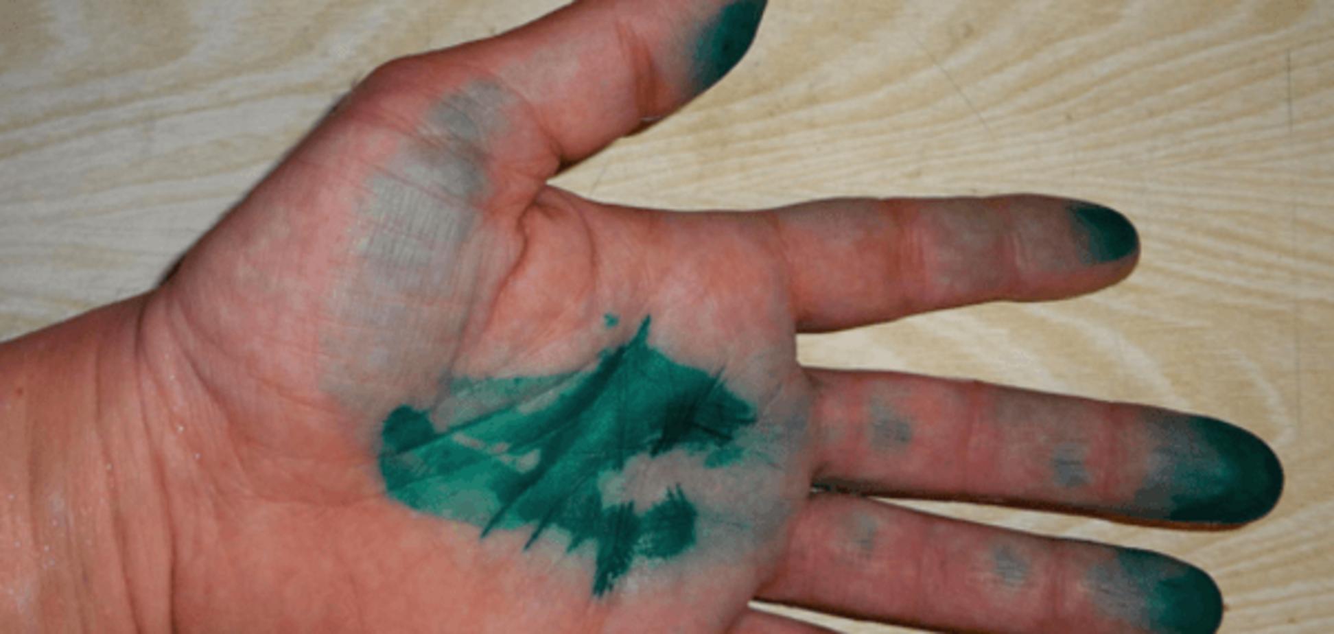 У Кременчуці облили зеленкою представників екзит-полів