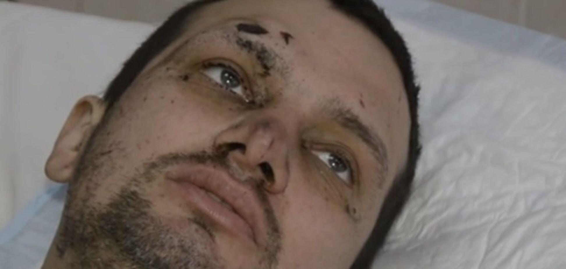 Раненый медик выжил, пролежав три дня на морозе под Дебальцево. Видео с героем