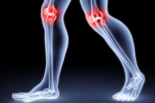 Здоровые суставы или как победить артрит что означает коксартроз тазобедренного сустава
