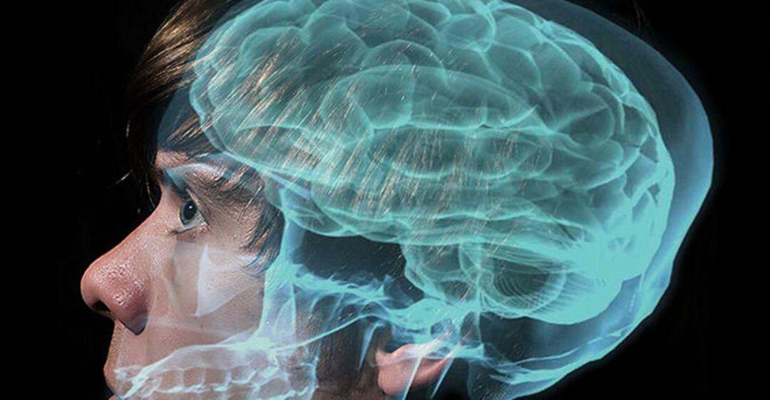 проверка мозга с картинками она