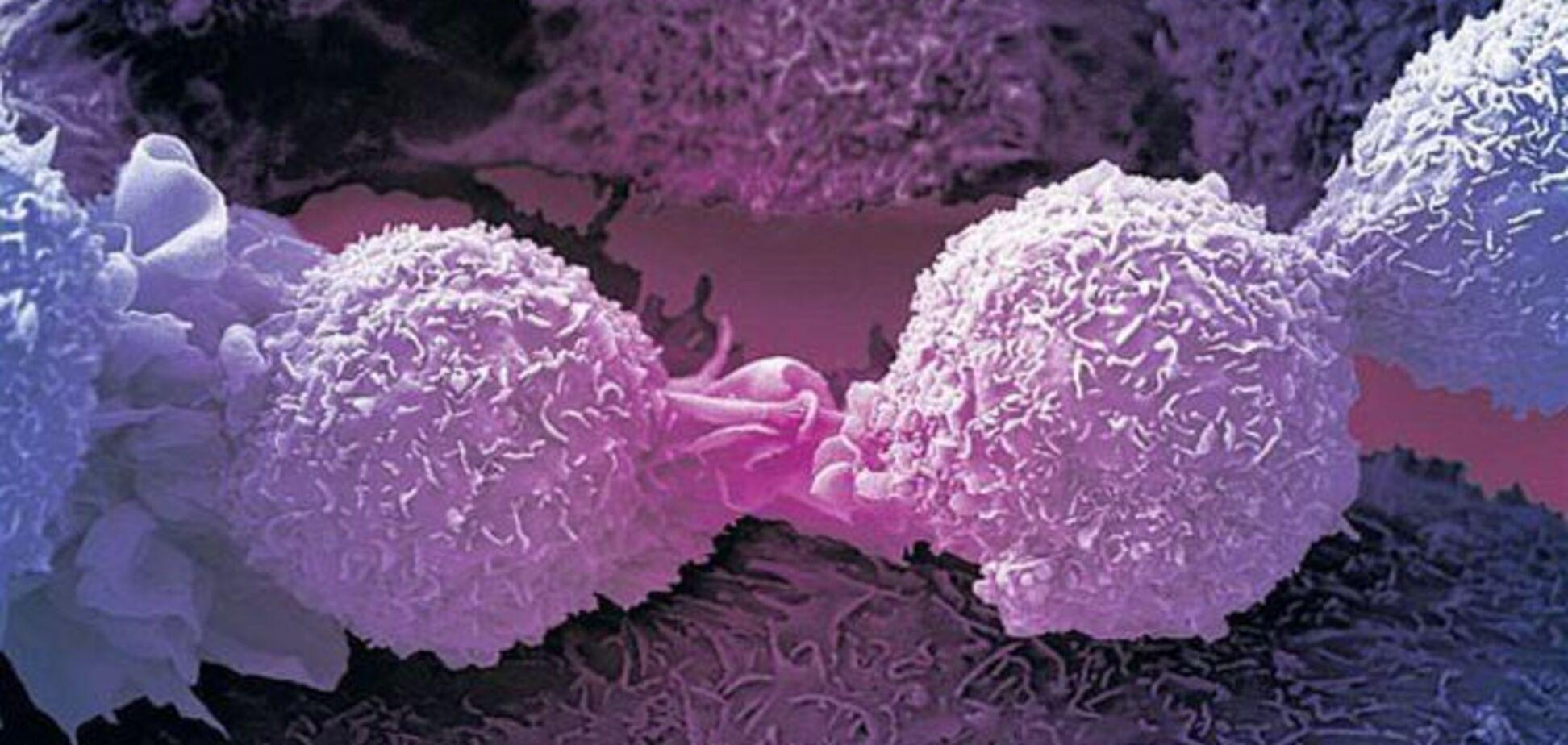 Найдена молекула, которая вылечит все виды рака