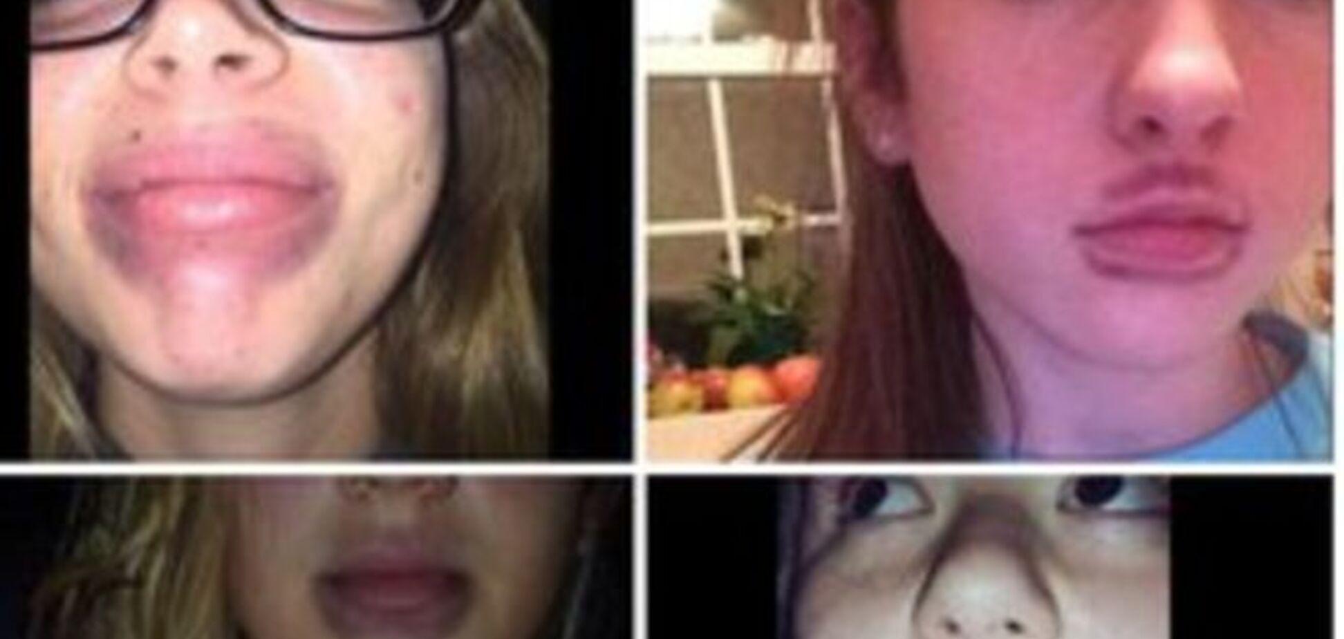 Губы, как у Кардашьян: ужасная процедура, на которую идут юные фанатки