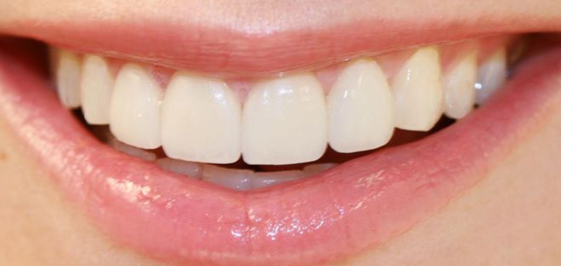 Названы 7 продуктов, опасных для здоровья зубов