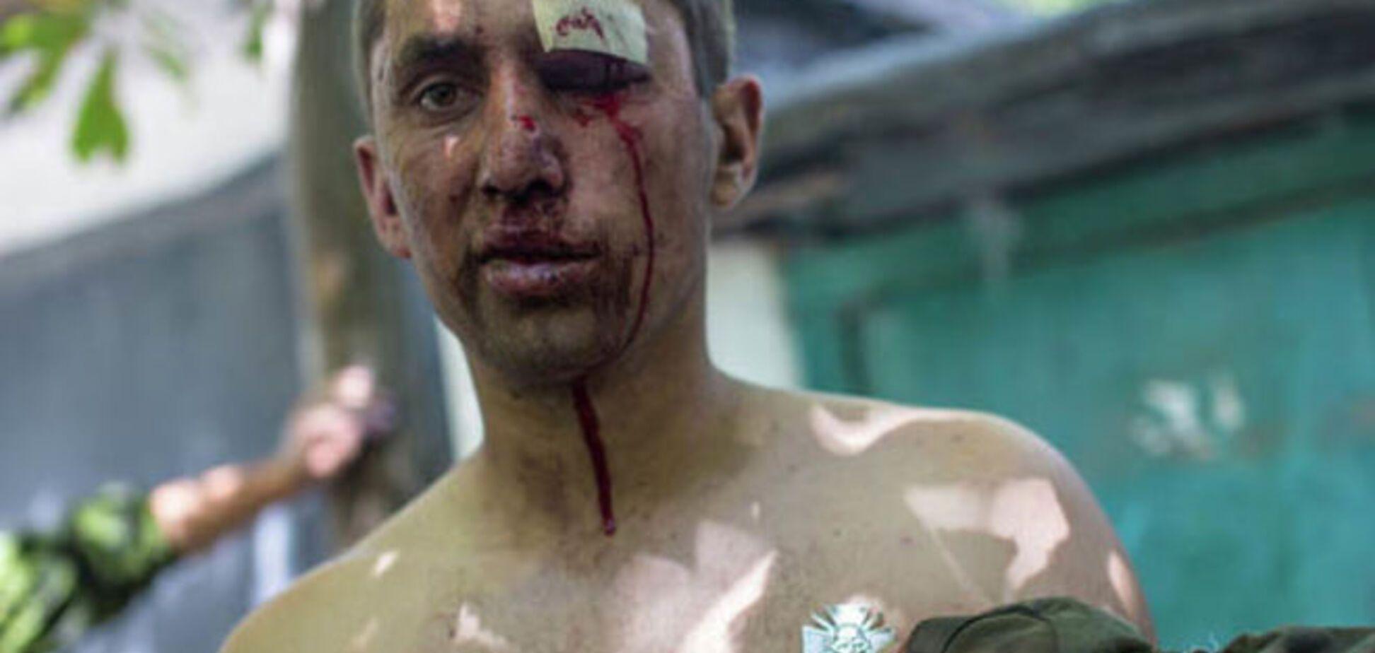 Amnesty International: і українська сторона, і терористи катують полонених