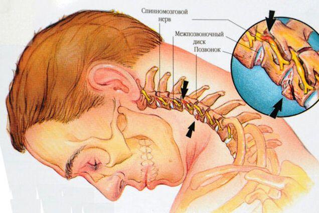 Остеохондроз шейных черепных суставов чем снять боль при артрозе коленного сустава