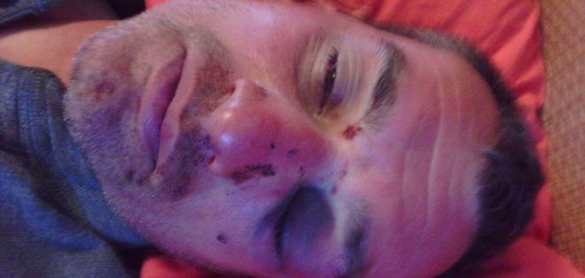 Выдворенный из Украины Ташбаев заявил, что его жестоко избили