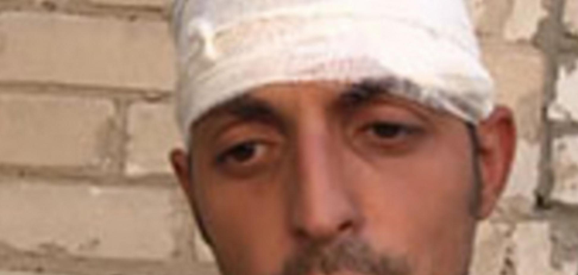 Информация о ранении Гиви и 15 террористов подтвердилась