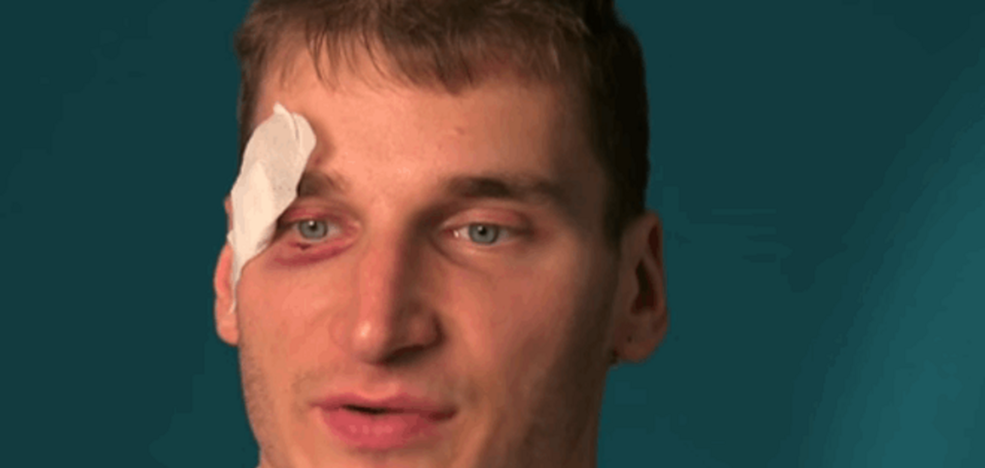В 'ДНР' сдали нервы: журналист рассказал, кто стоит за его избиением