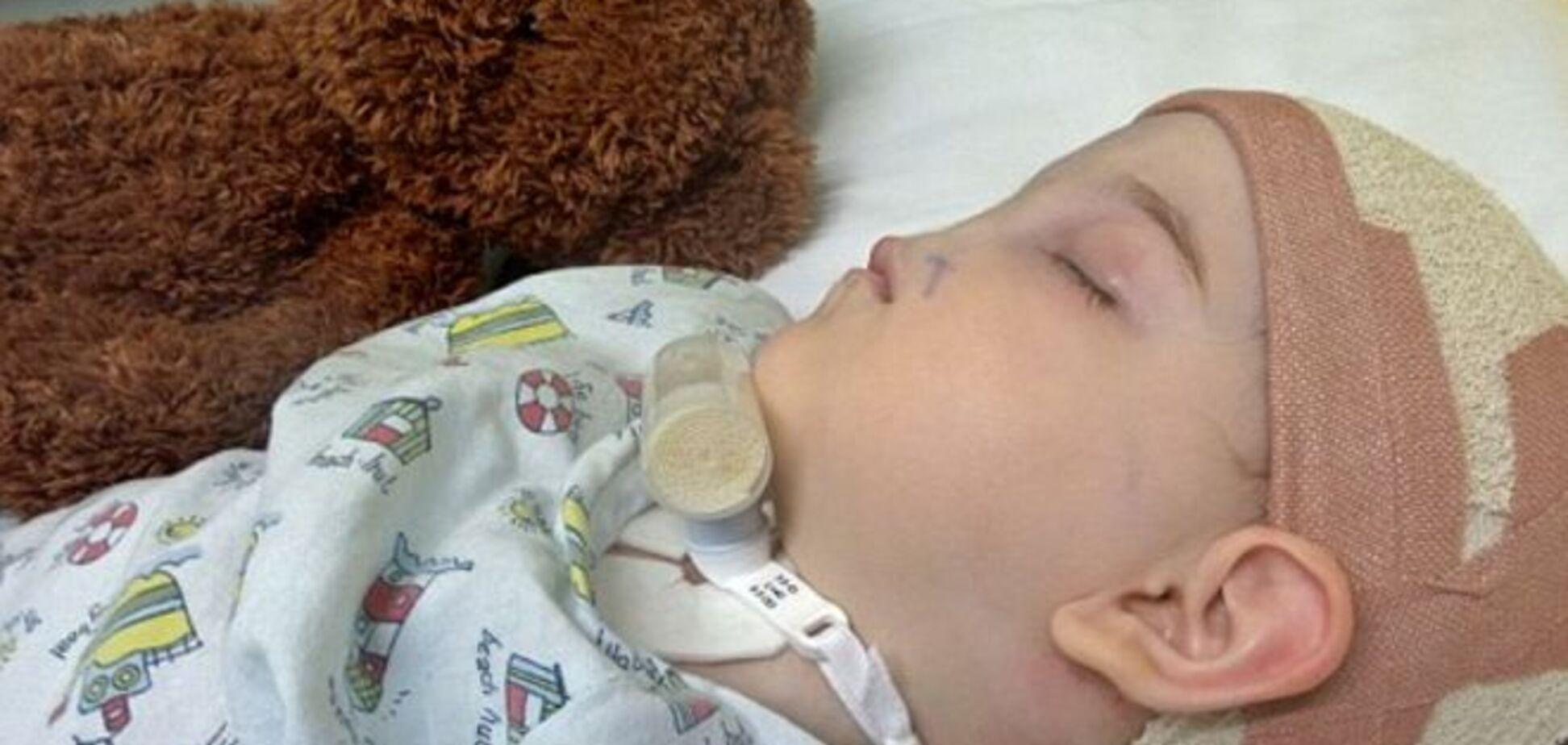 2-летней девочке, родившейся без носа, врачи вырастят недостающий орган