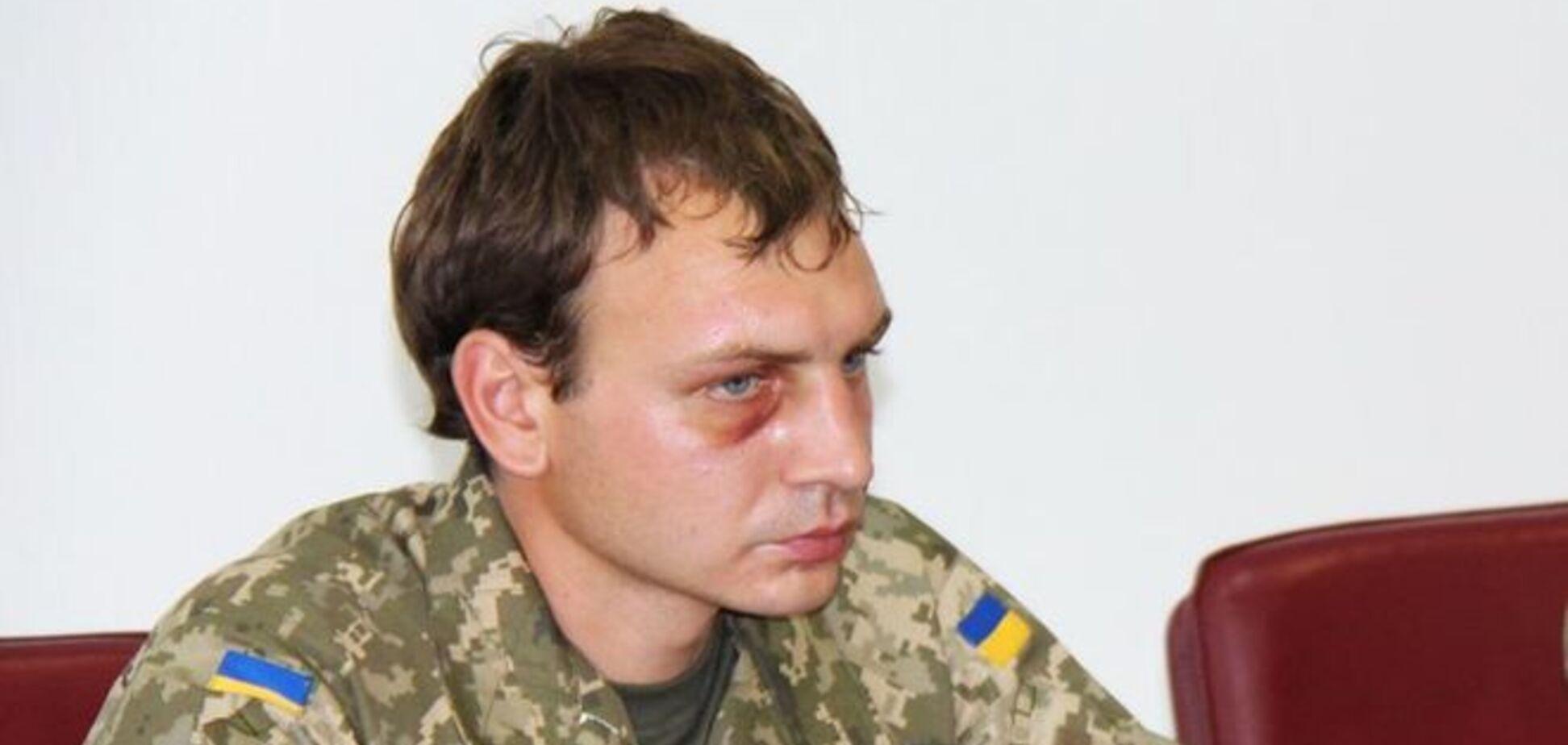 Три дня пыток за вранье о Марьинке: освобожденный боец рассказал о лже-пресс-конференции террористов