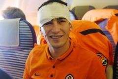 Футболист 'Шахтера' рассказал о последствиях страшной травмы