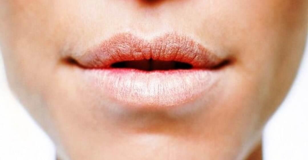 Трещины в уголках губ грибок лечение