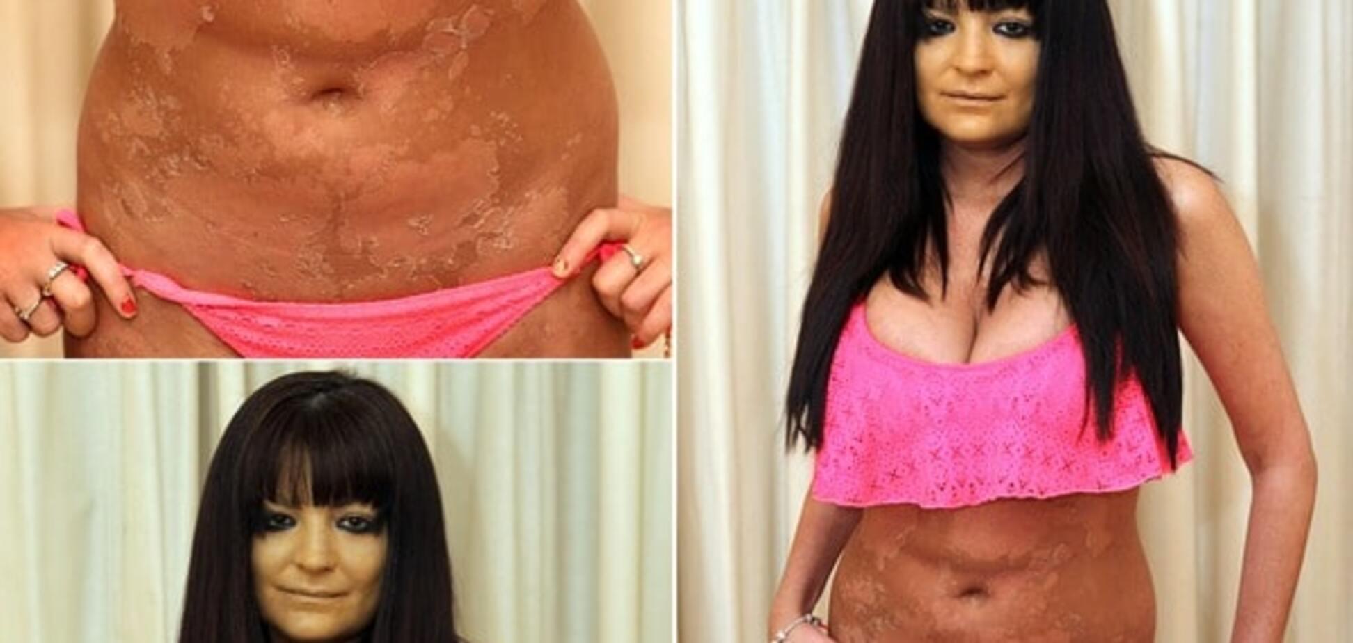На тілі порноактриси після солярію з'явилися моторошні плями: опубліковані фото