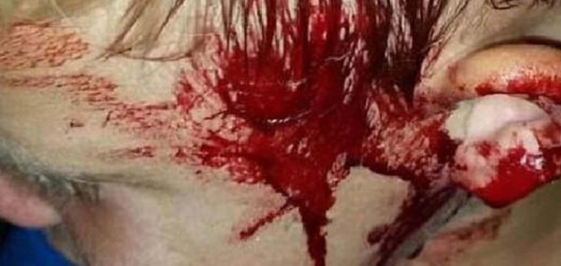Страшный случай в Австралии: гигантский питон едва не съел ребенка