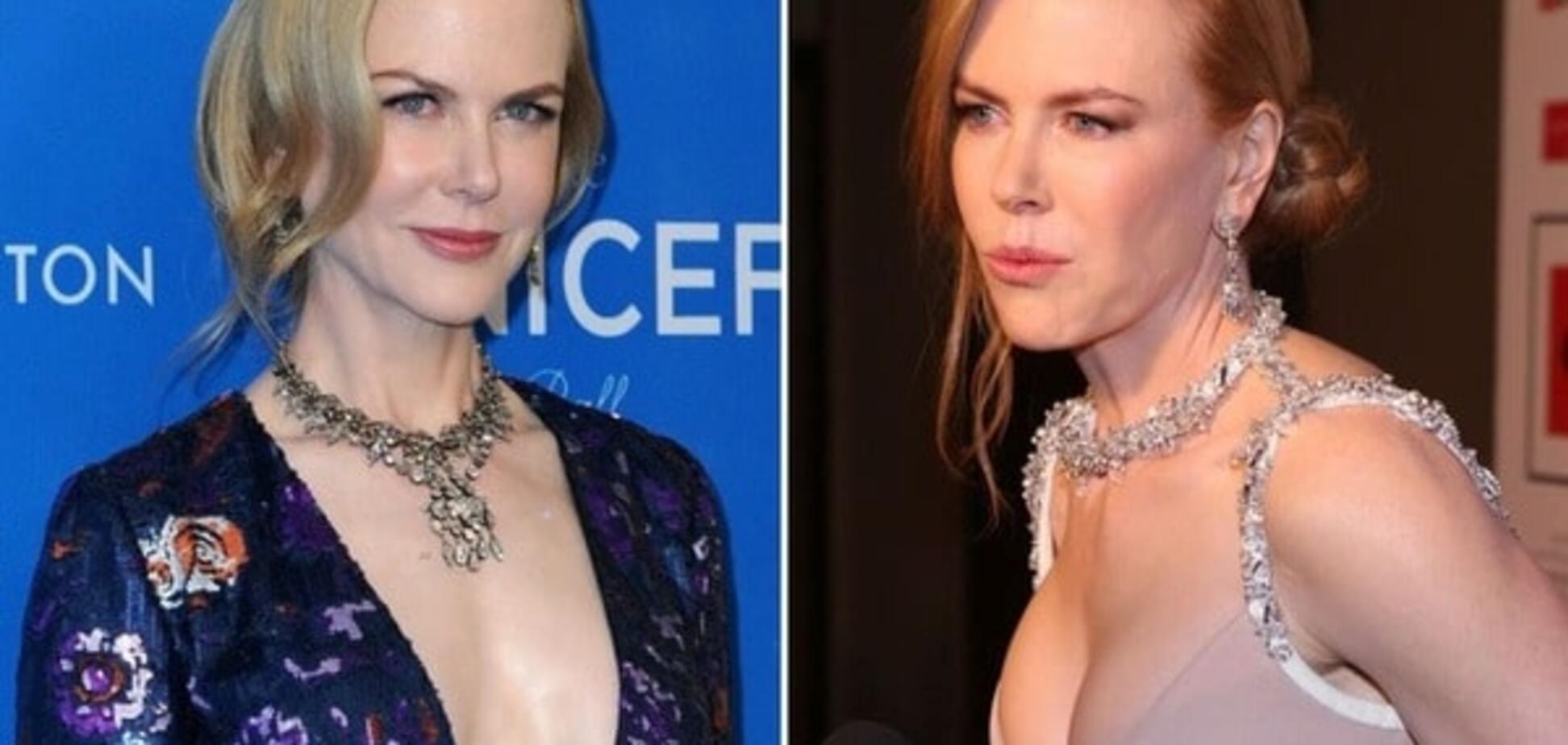 Жертвы силикона: кто из звезд решил избавиться от грудных имплантов