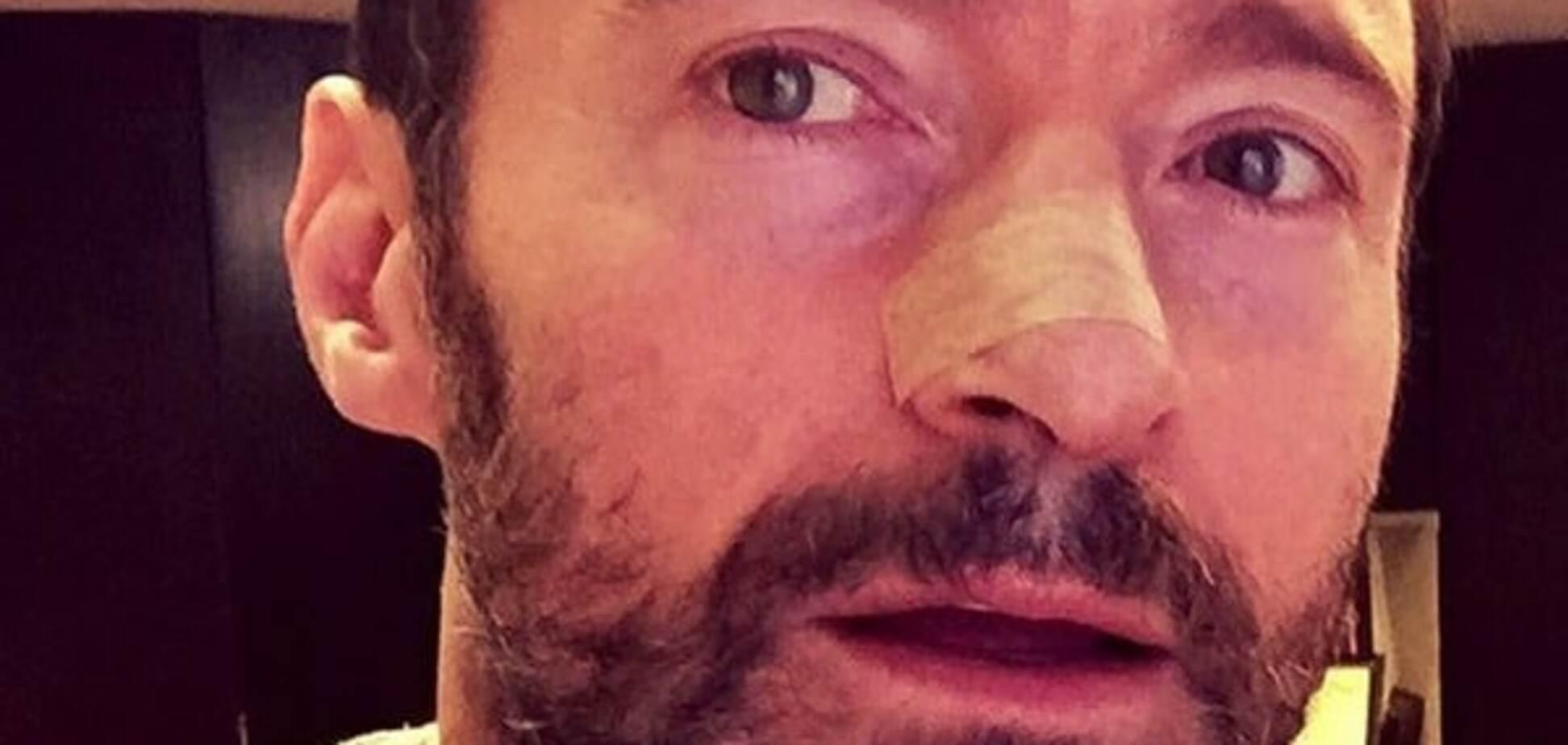 У Х'ю Джекмана рецидив: актор знову бореться з раком