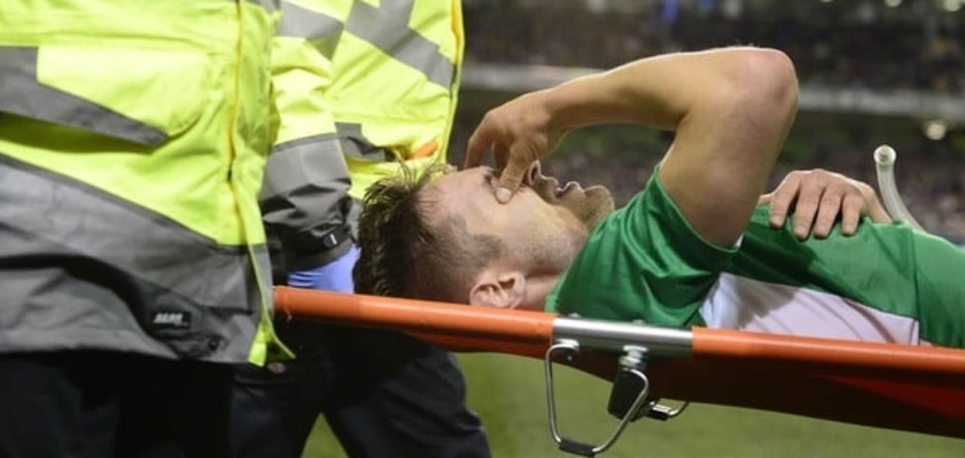 Ірландський футболіст отримав страшну травму в товариському матчі: фото не для людей зі слабкими нервами