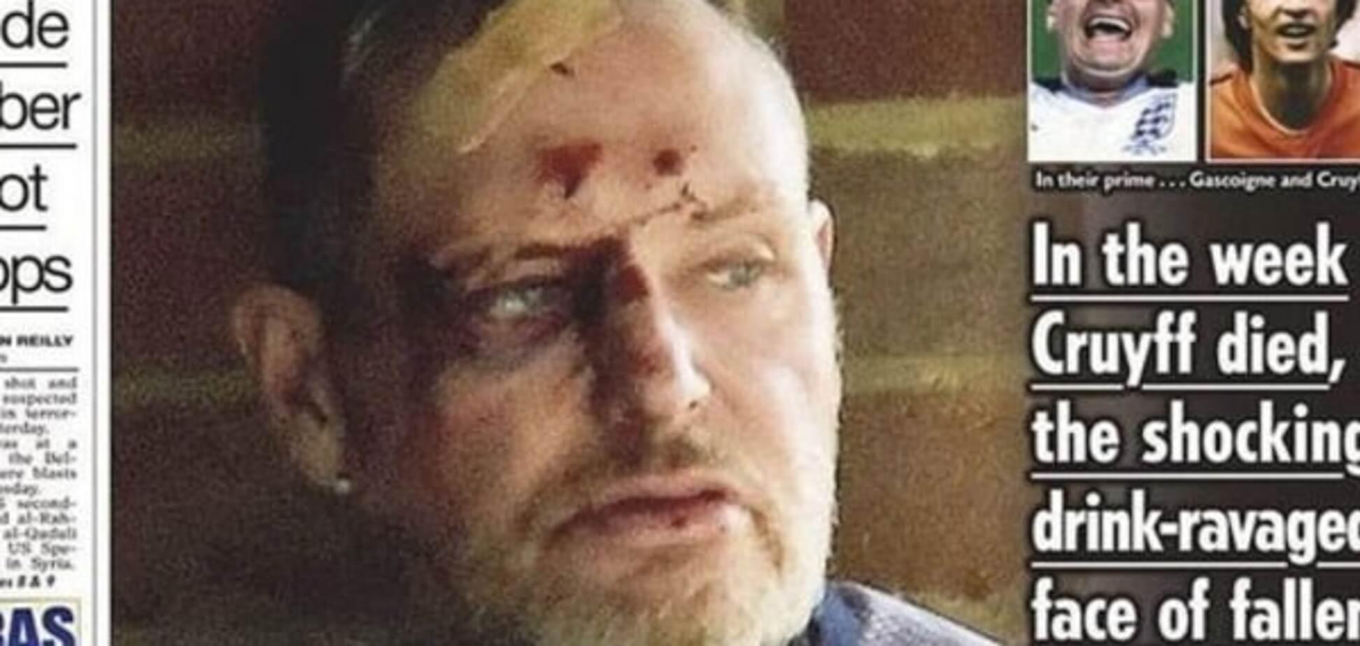 Легендарный футболист сборной Англии найден пьяным с разбитой головой: жуткие фото