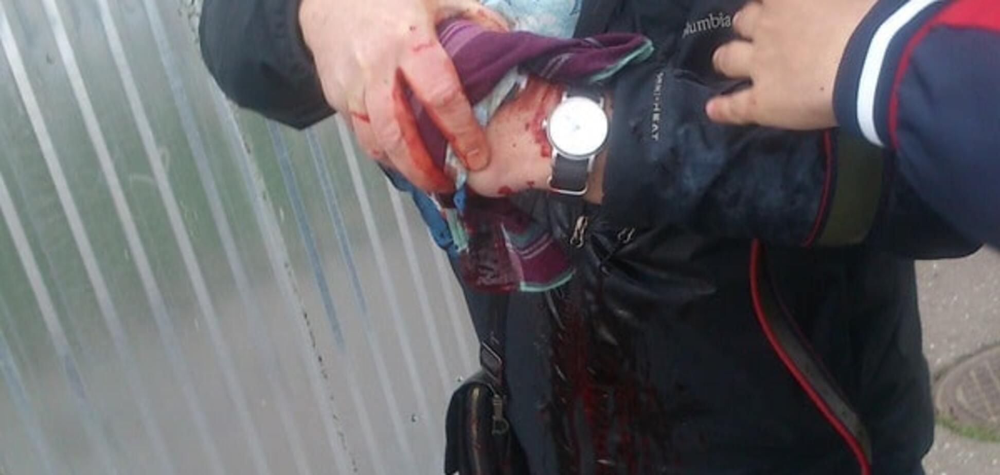 На Куликовому полі в Одесі прогримів вибух: є постраждалий