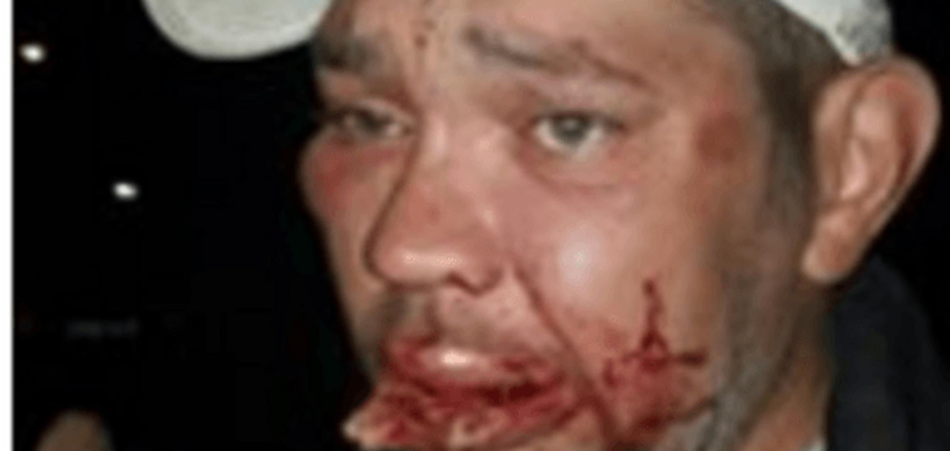 Вже вперше: у Києві на Оболоні люди з битами побили перехожих