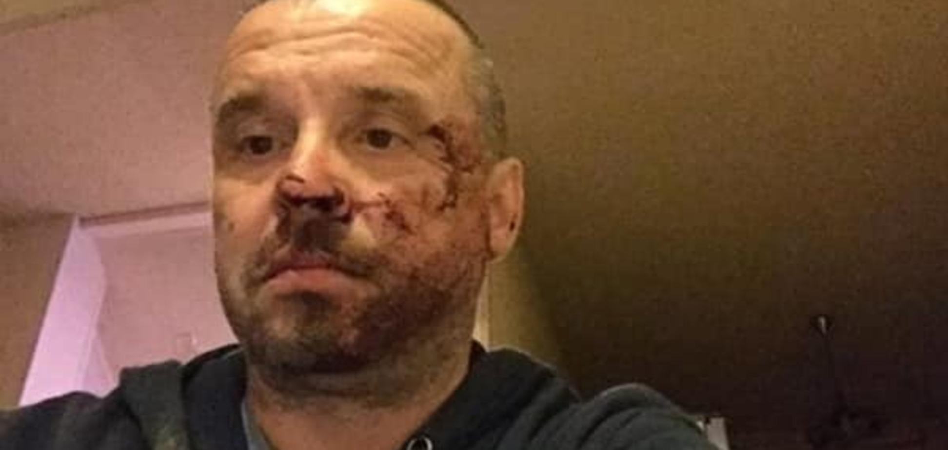 На Донетчине избили председателя областной 'Батьківщини'