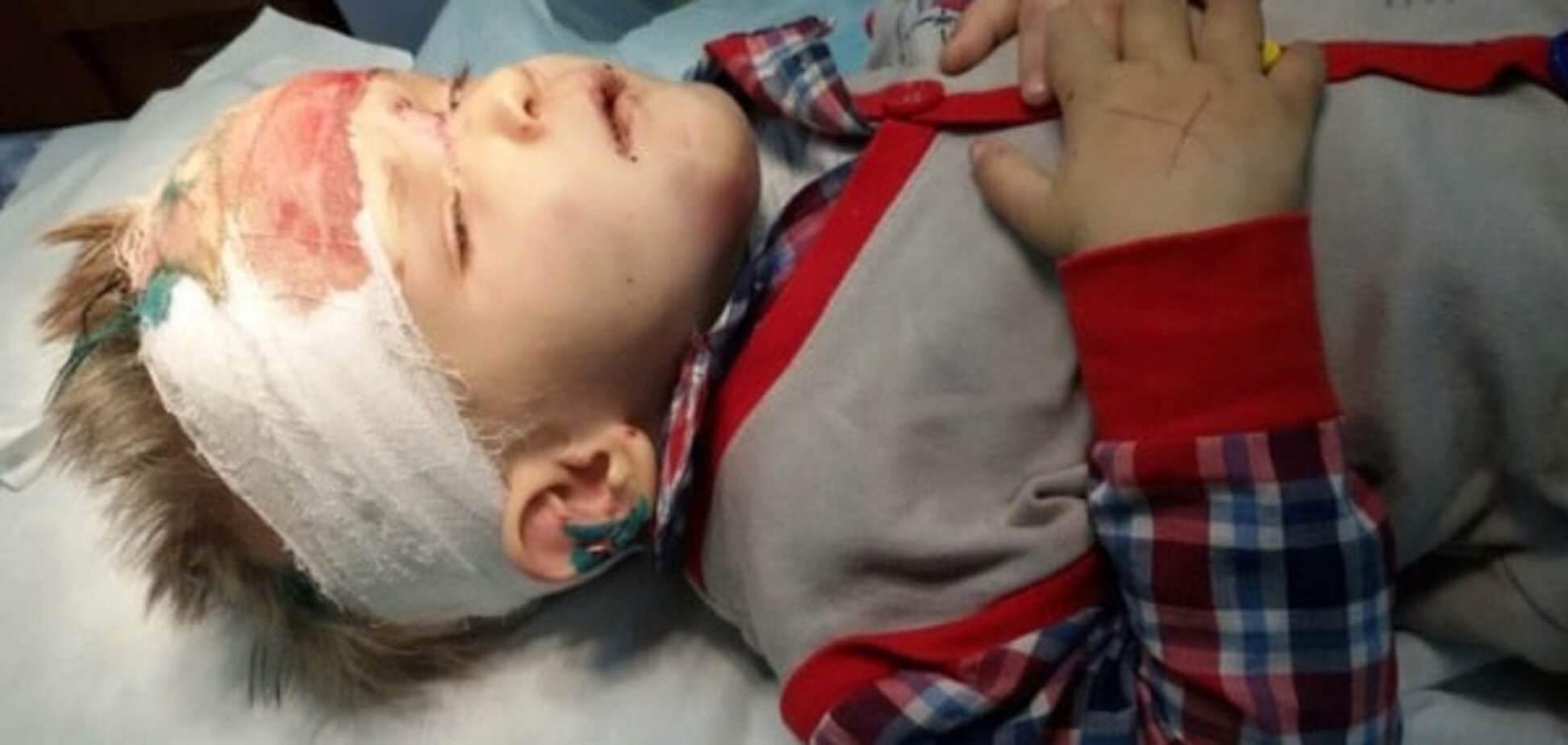Не помнит кто и откуда: в Одессе нашли покалеченного ребенка. Опубликованы фото