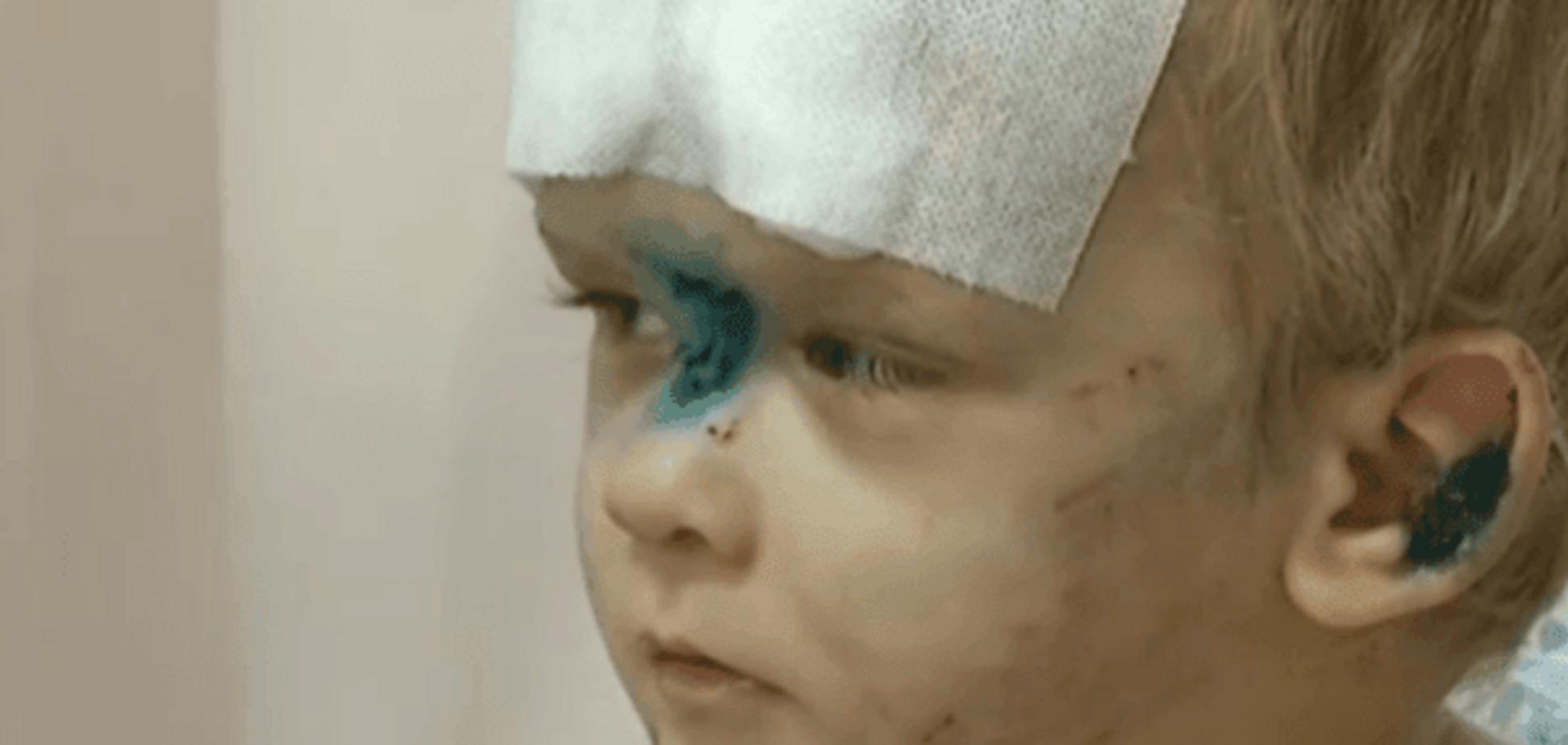 Родственники избитого в Одессе малыша нашлись в Запорожье