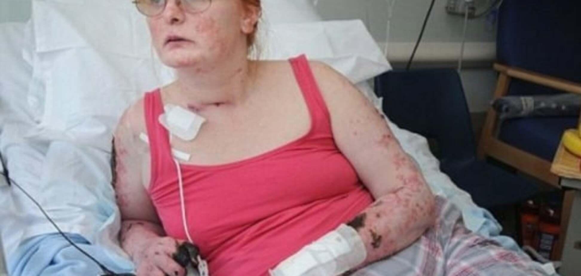 Думала что простуда: женщине ампутируют три конечности, вследствие редкого заражения крови. Фото