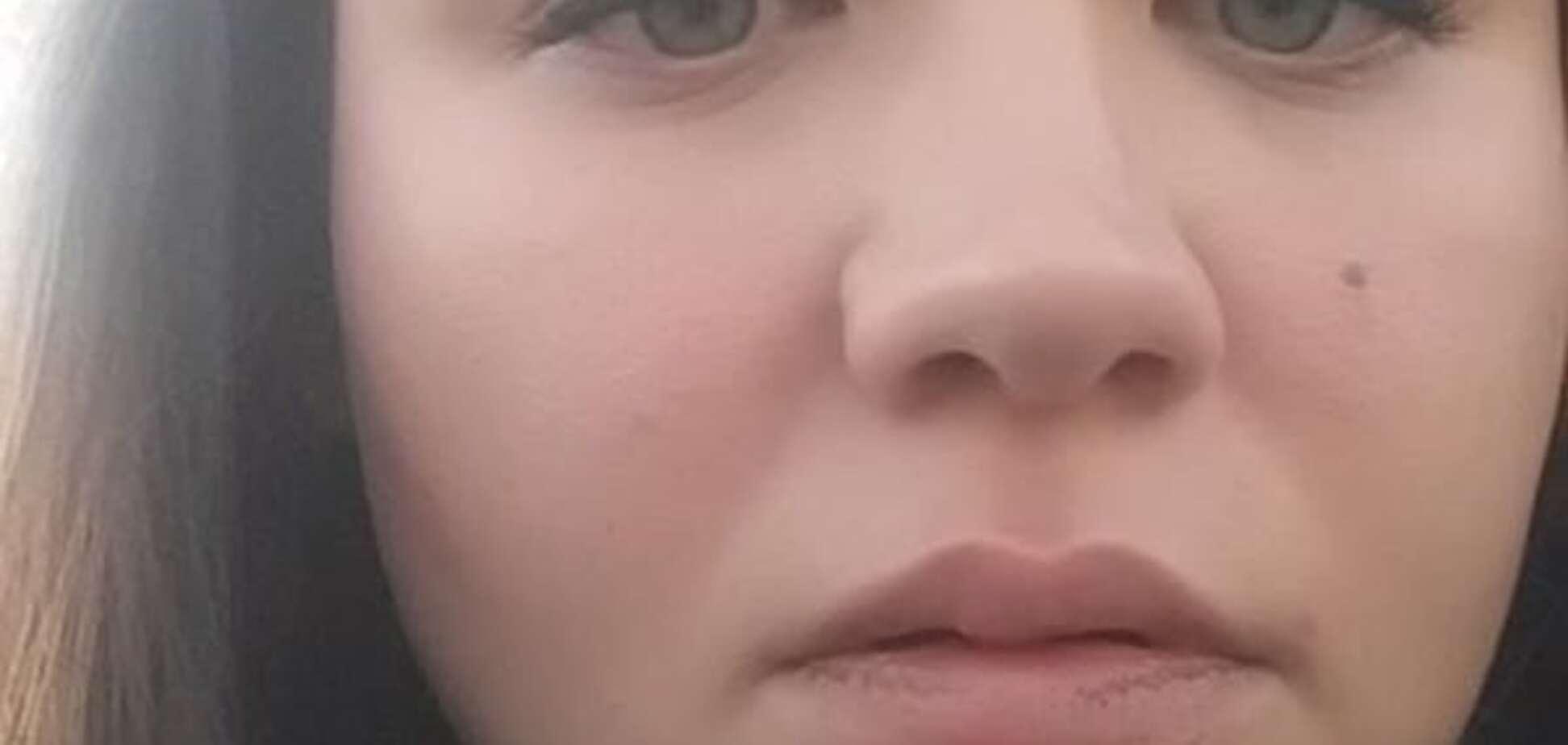 У Києві водій маршрутки вдарив дівчину за зауваження