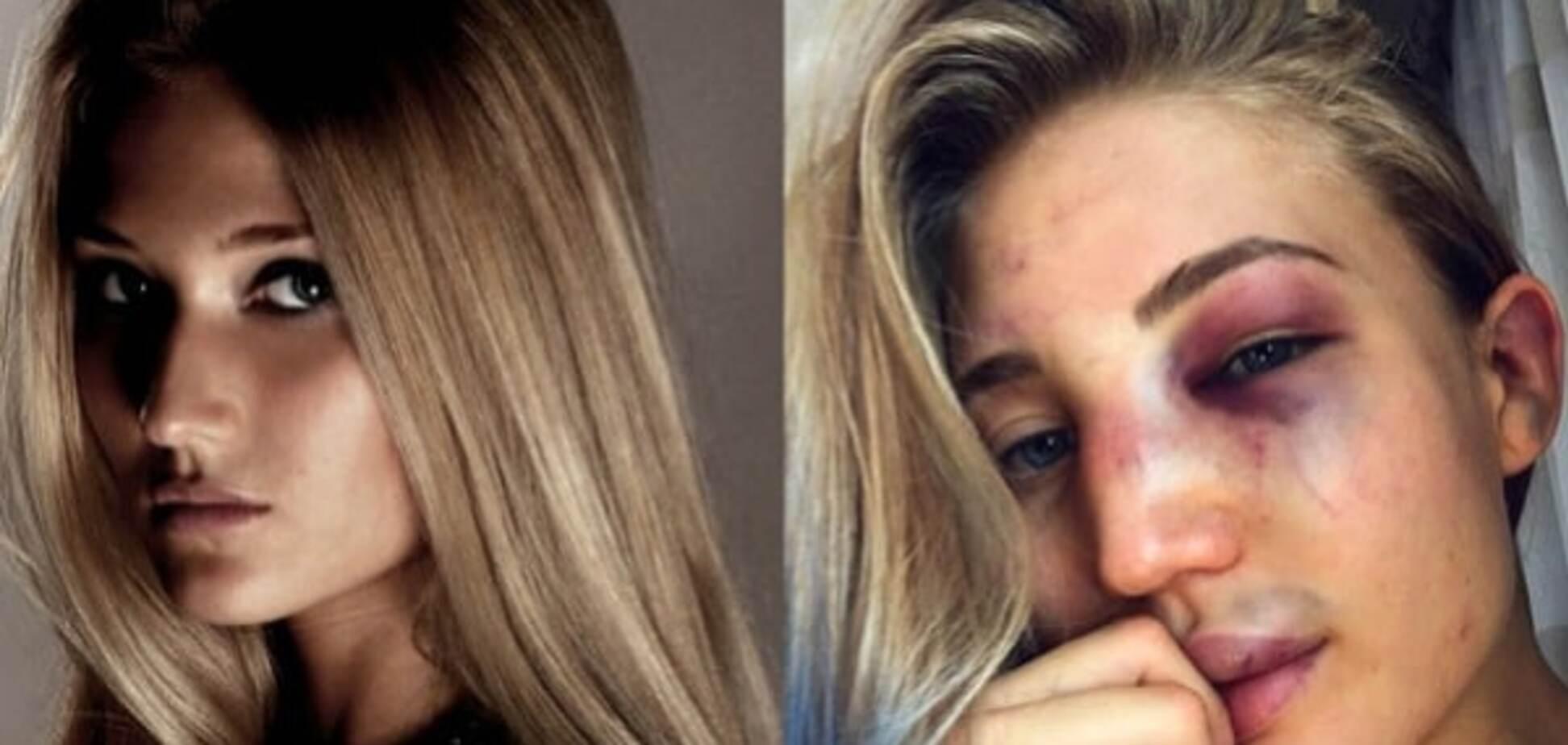 Блогеры показали, как выглядят девушки после боев в ММА: шокирующие фото
