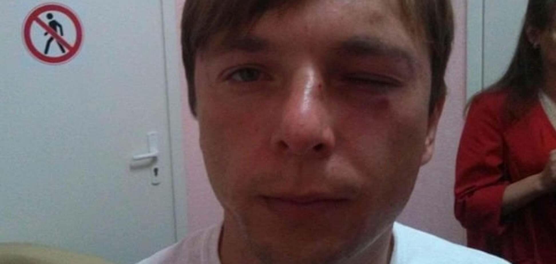 На Поштовій площі в Києві побили журналіста