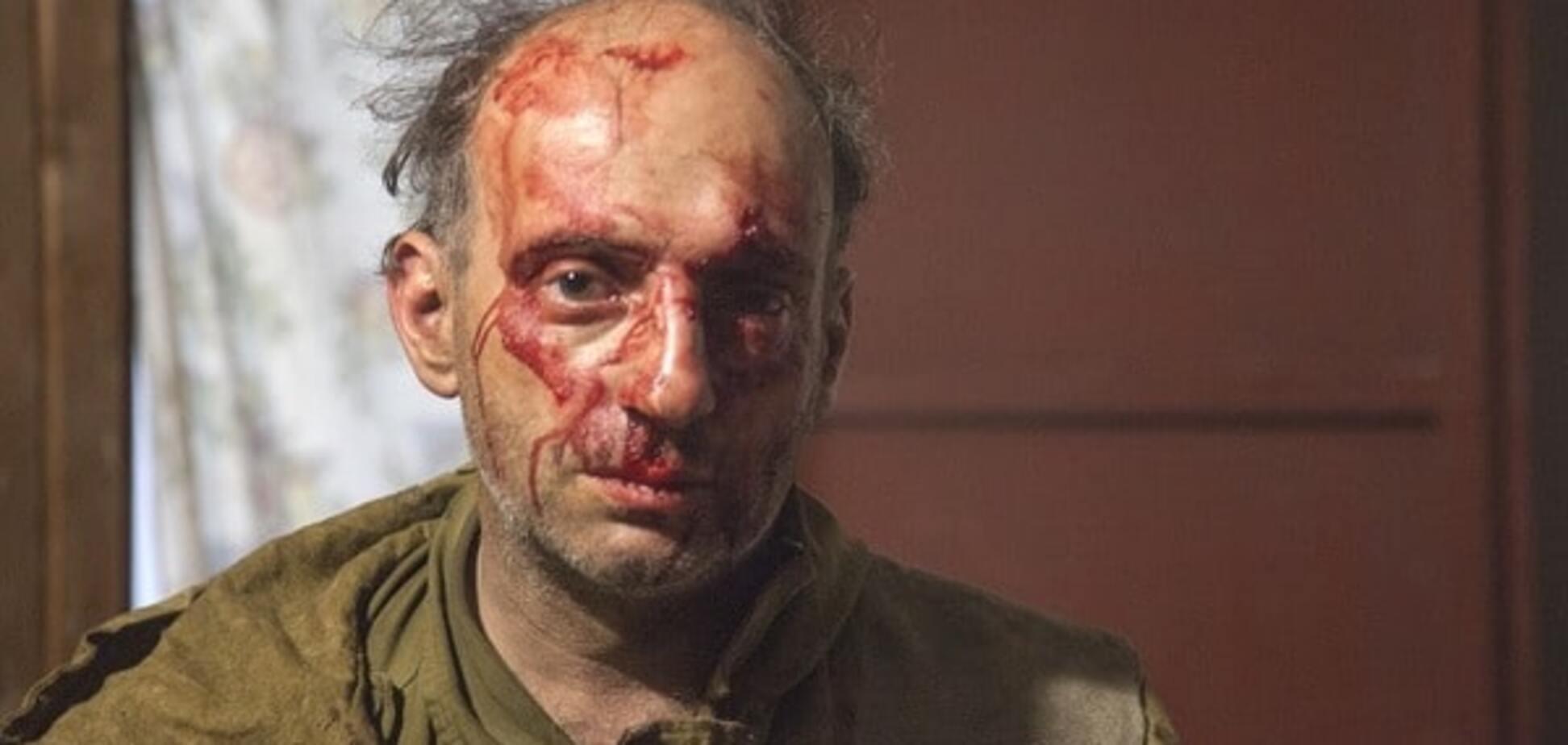 'Убирайтесь в свою пендосию': в России жестоко избили активистов Greenpeace