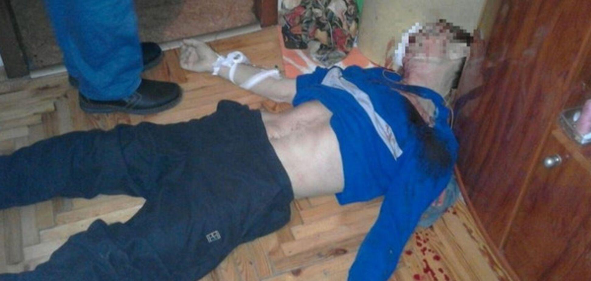 В Запорожье мужчина выстрелил себе в голову
