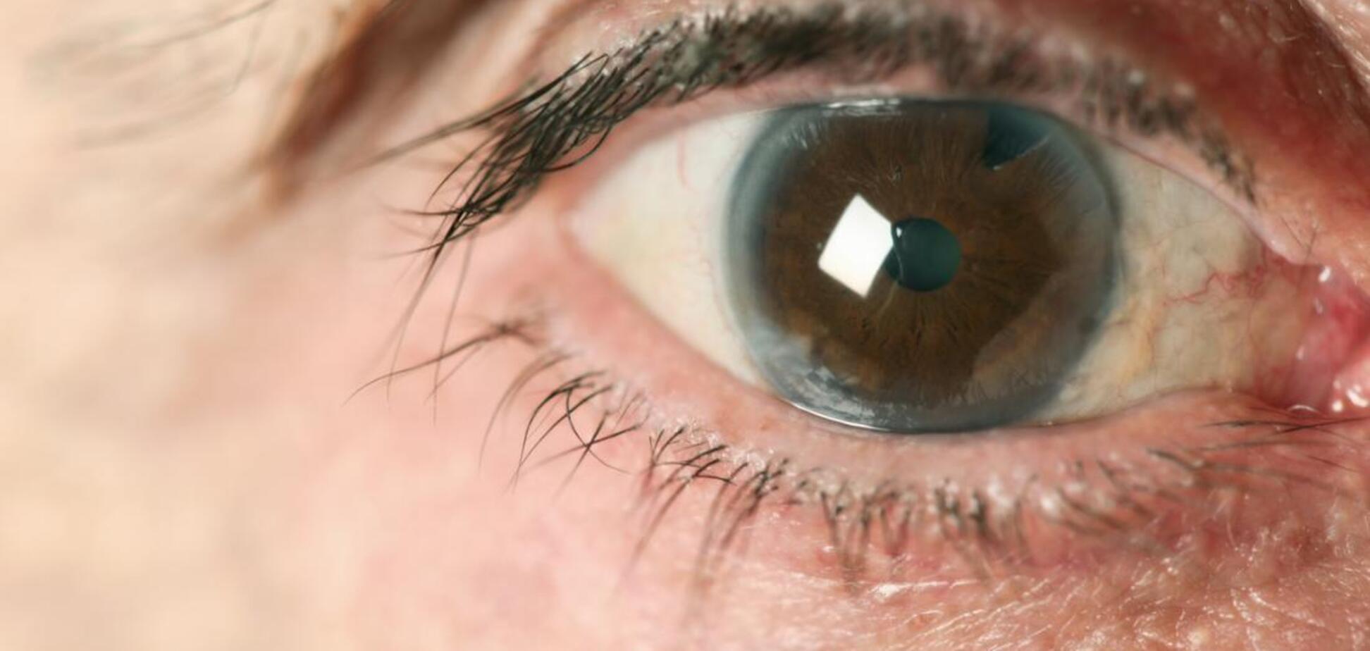 Знайдений новий спосіб запобігти сліпоті