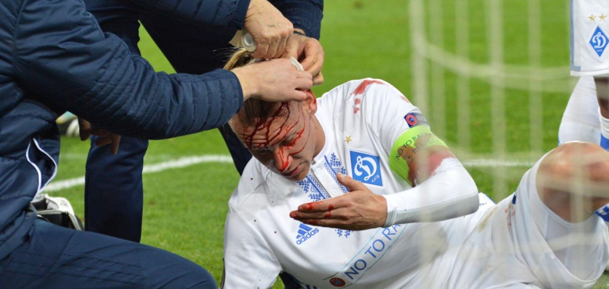 Домагой Віда травма
