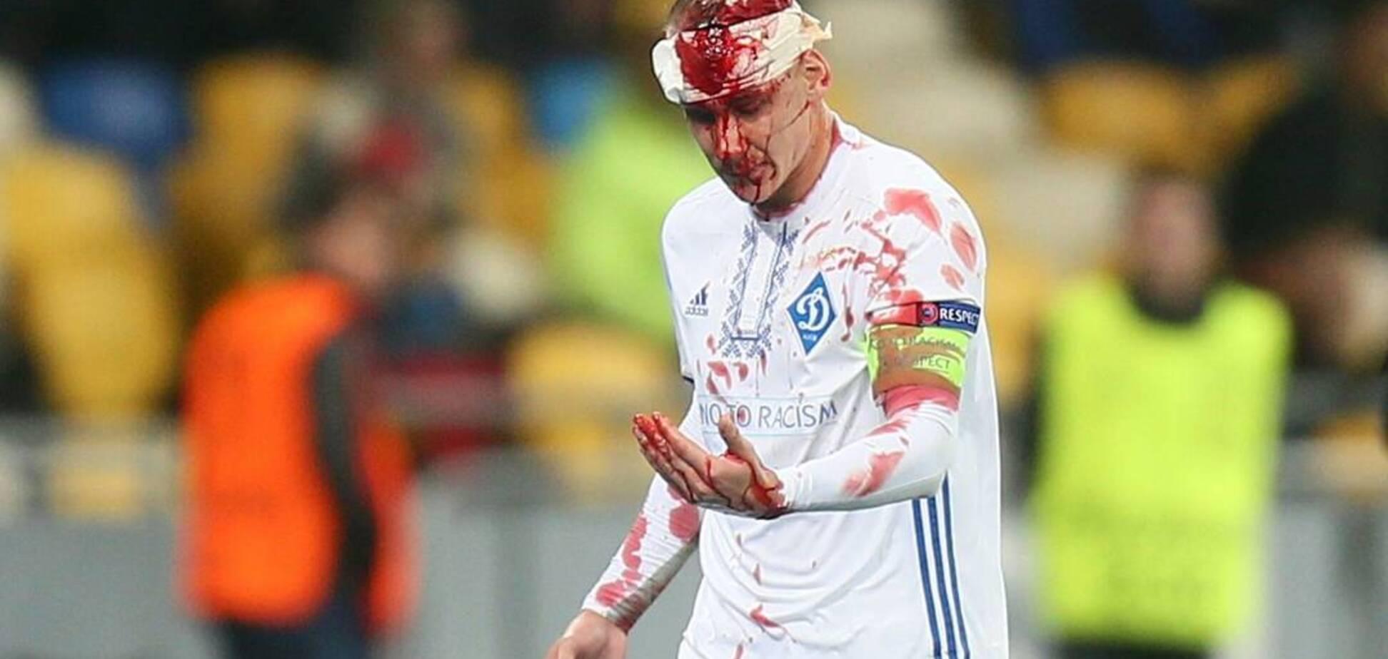 Слабонервным не смотреть! 'Динамо' опубликовало кошмарные фото окровавленного капитана команды