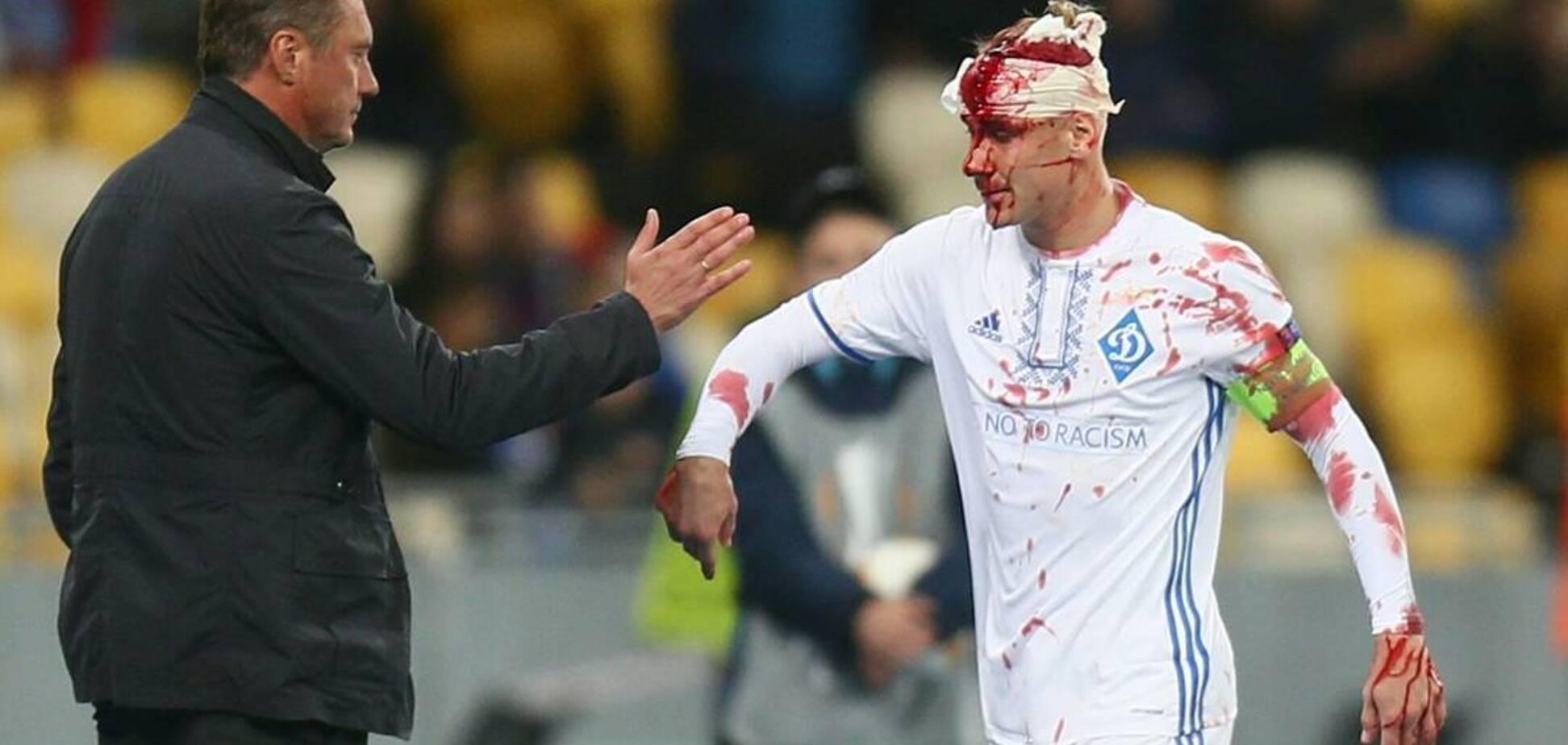 'Роналду падает от ветра': в России восхитились капитаном 'Динамо', получившего жуткую травму