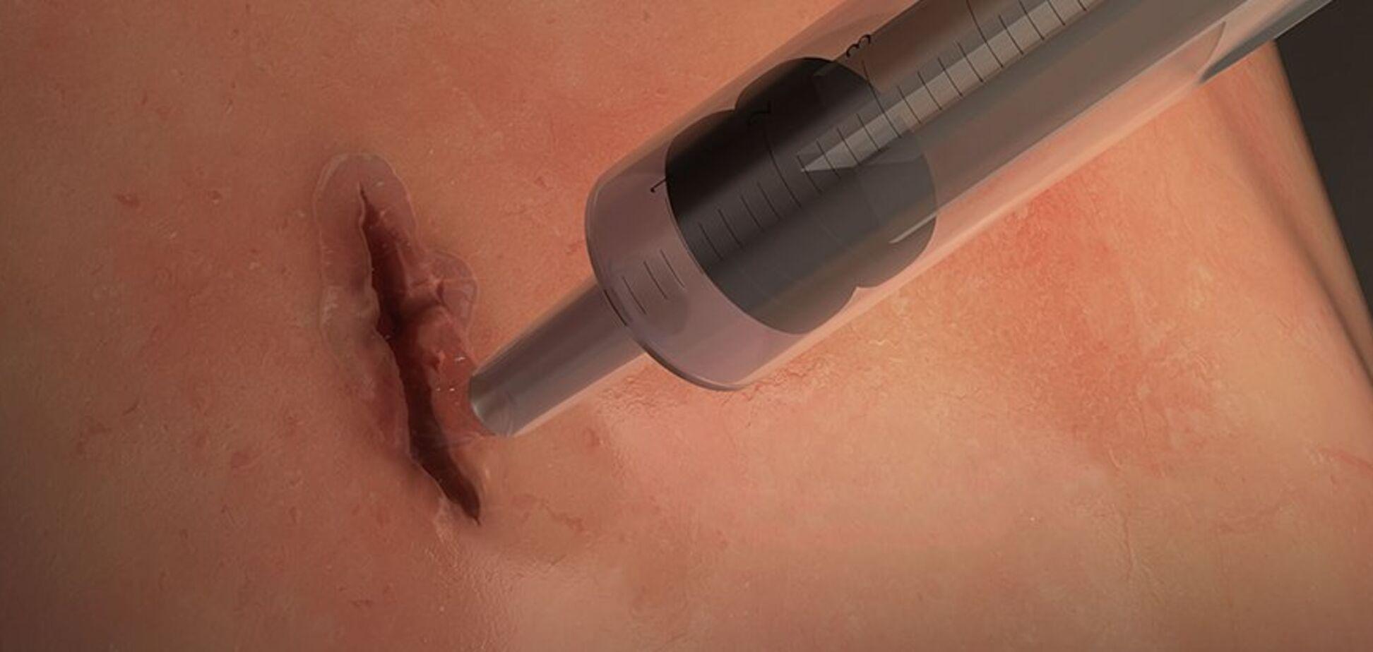 Запечатати рани за 60 секунд: вчені розробили новий клей
