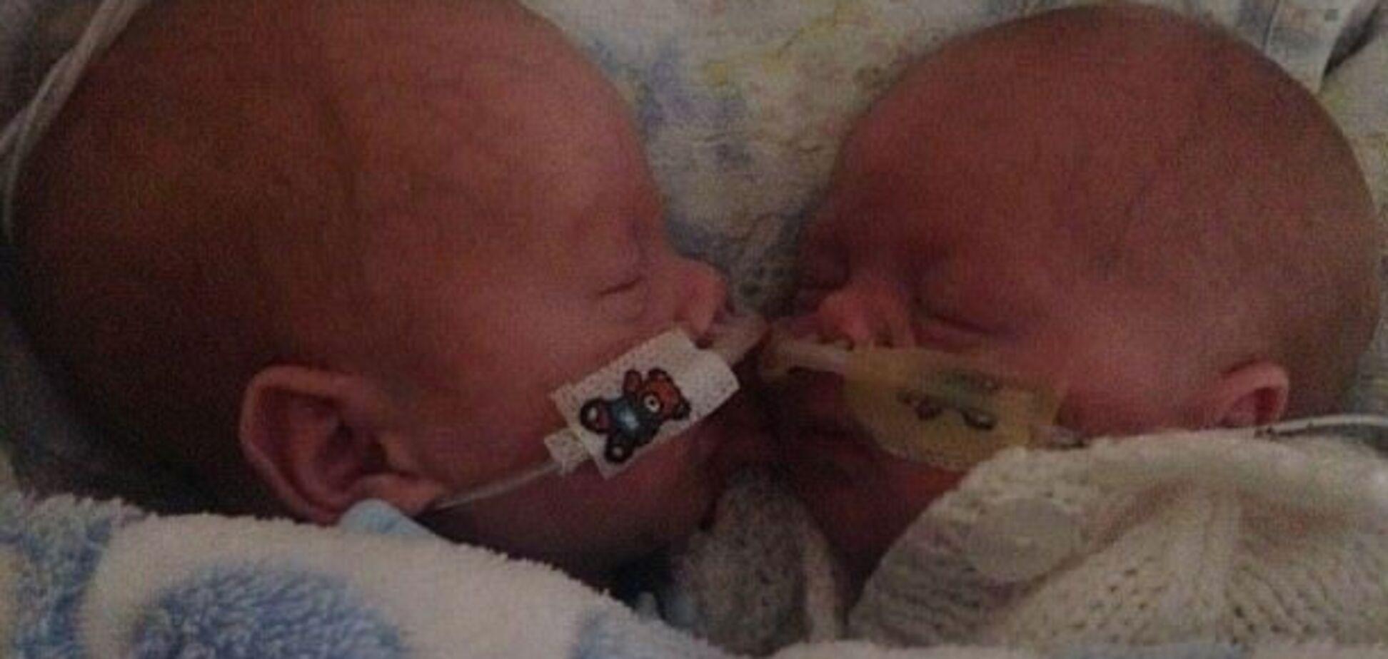 Близнюки, які народилися раніше терміну, змогли врятувати один одного
