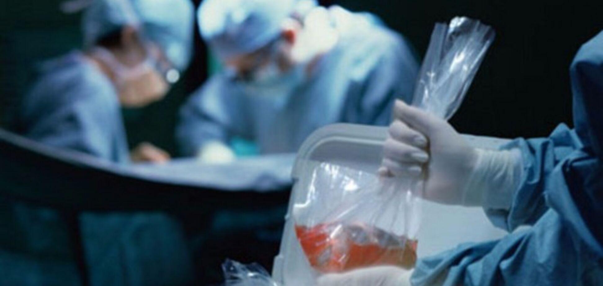 Трансплантация органов на месте: в украинской медицине грядет революция