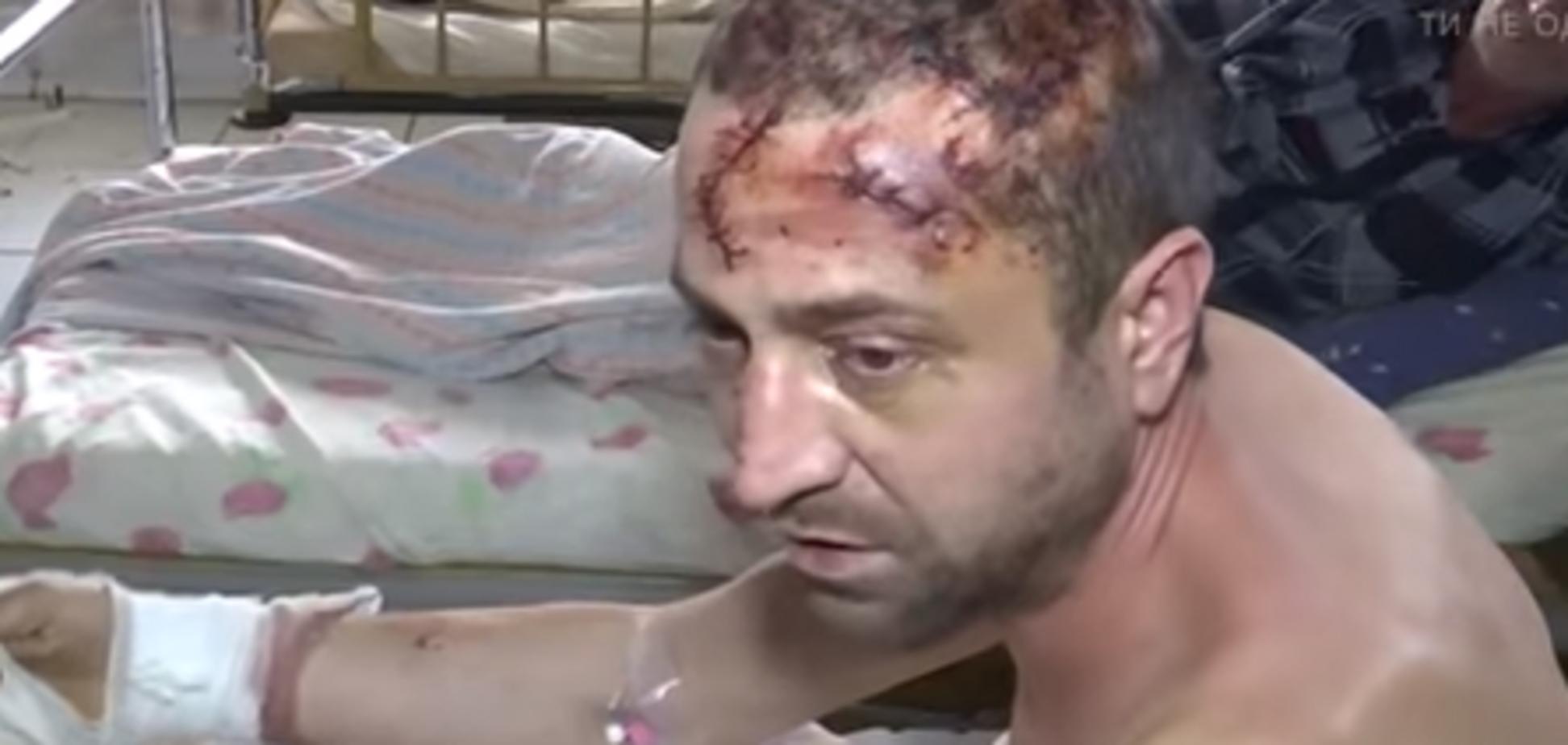 Пытки Житомир