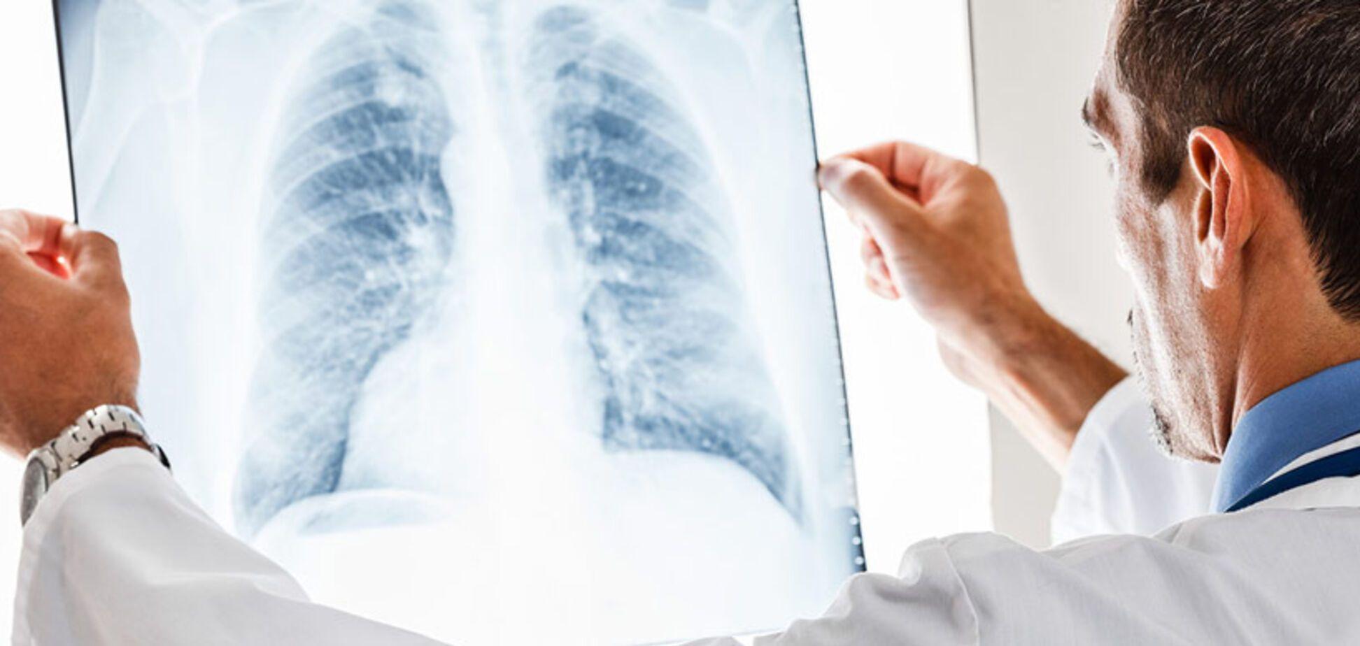 На Київщині підліток помер від туберкульозу через недбалість матері