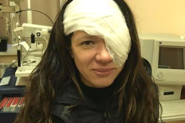 Народная артистка Украины показала, как выглядит после тяжелой операции на лице