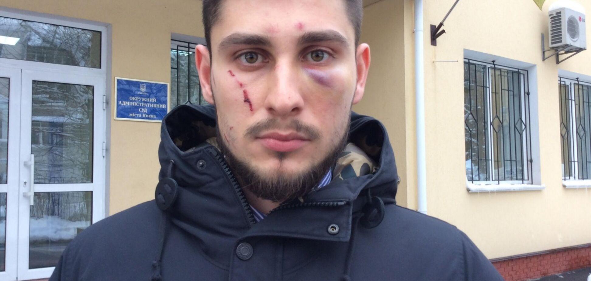 Земельный махинатор Попов пытался похитить адвоката у здания Минюста