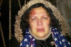 Вижила завдяки диву: в Росії противницю Путіна жорстоко побили через 'непатріотичний' одяг