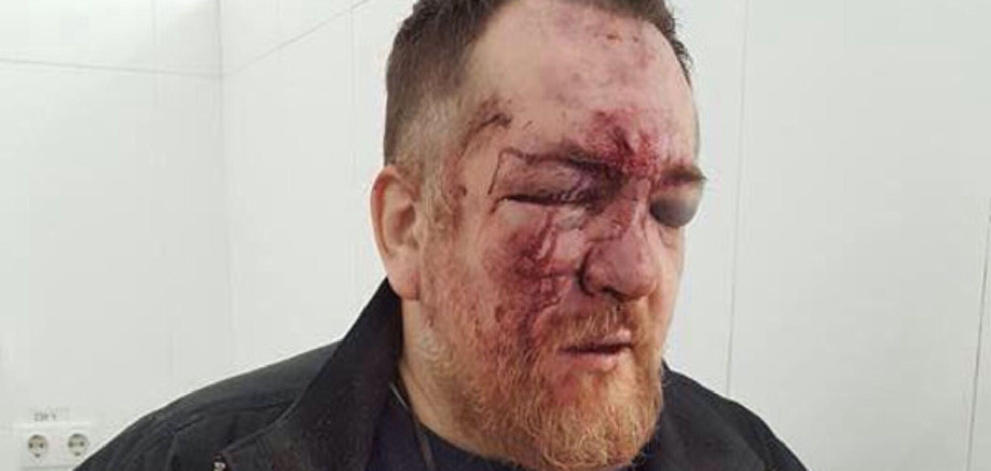 Это Харьков, детка: антимайдановцу сломали нос за 'колорадскую' ленточку на 23 февраля